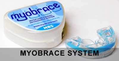 Myobrace for kids systeem - Logopedie Grave